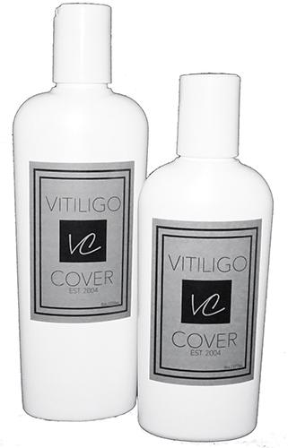 vitiligo camaflage