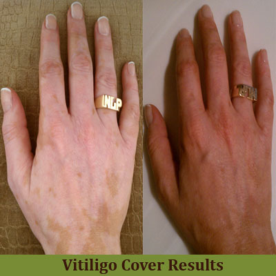 fast vitiligo cure