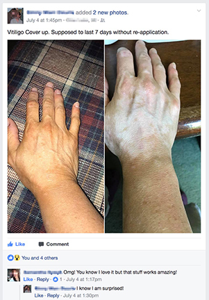 vitiligo-cover-lotion-facebook