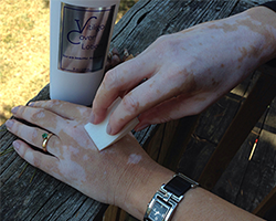vitiligo cover for men