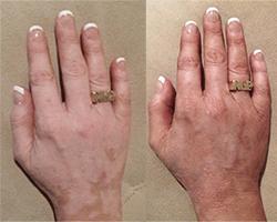 skin vitiligo