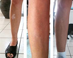 vitiligo-on-legs