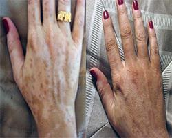 safe vitiligo treatment